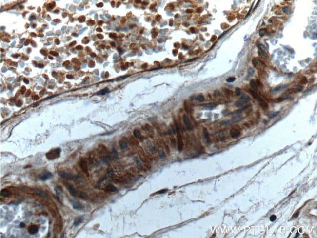 Angiopoietin 1 Rabbit anti-Human, Mouse, Rat, Polyclonal, Proteintech 20 μL; Unconjugated voir les résultats