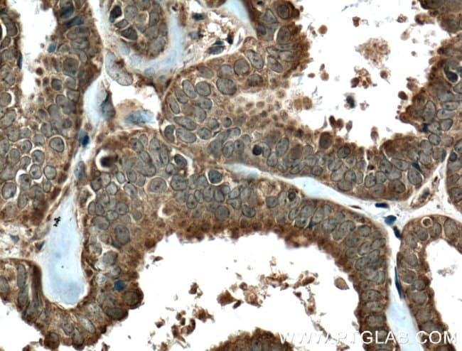 FKBPL Rabbit anti-Human, Mouse, Polyclonal, Proteintech 20 μL; Unconjugated voir les résultats