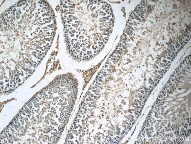 Osteocalcin Rabbit anti-Human, Mouse, Rat, Polyclonal, Proteintech 20 μL; Unconjugated voir les résultats