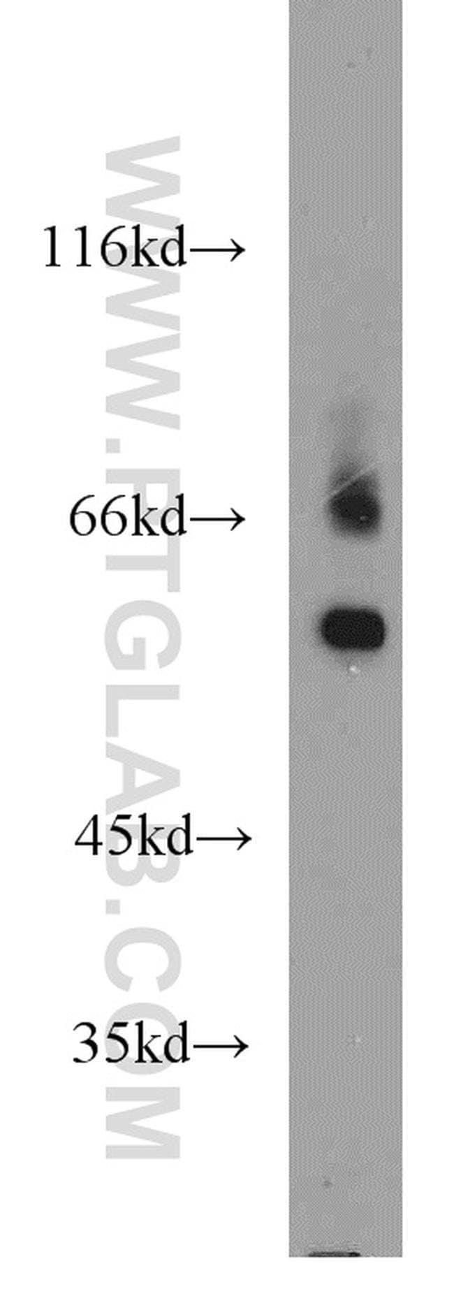 TTC39B Rabbit anti-Human, Mouse, Polyclonal, Proteintech 20 μL; Unconjugated voir les résultats
