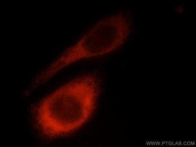 LAMB1 Rabbit anti-Human, Mouse, Rat, Polyclonal, Proteintech 20 μL; Unconjugated voir les résultats