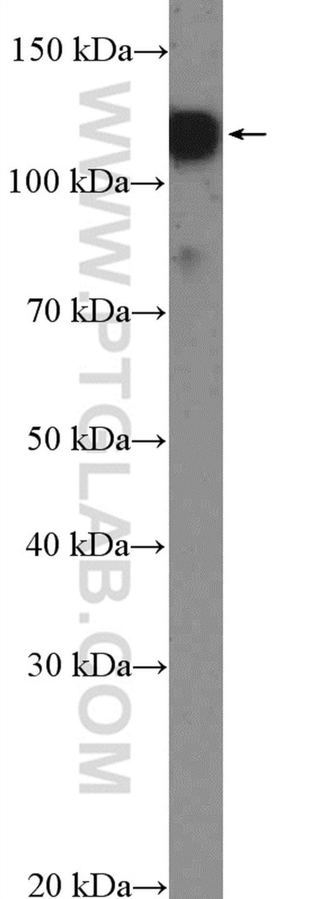 SMTN Rabbit anti-Human, Mouse, Polyclonal, Proteintech 150 μL; Unconjugated Ver productos
