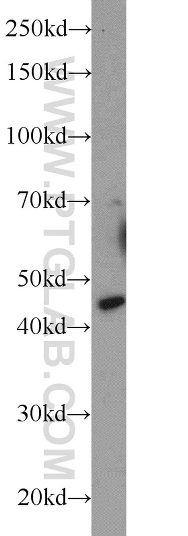 C20orf112 Rabbit anti-Human, Mouse, Polyclonal, Proteintech 20 μL; Unconjugated voir les résultats