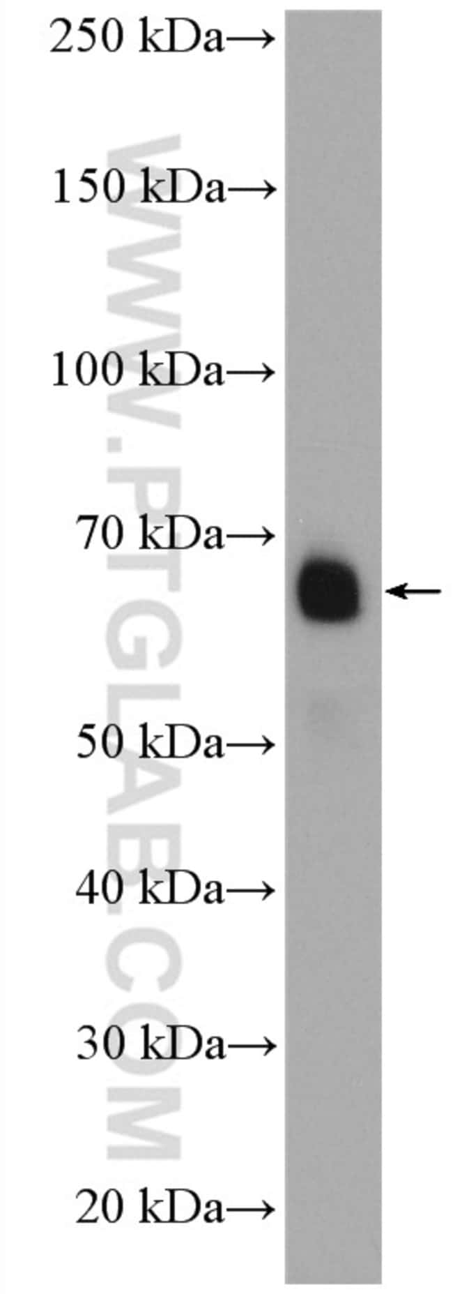MON1A Rabbit anti-Human, Polyclonal, Proteintech 20 μL; Unconjugated voir les résultats