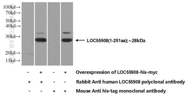 ANGPTL8/Betatrophin Rabbit anti-Human, Mouse, Polyclonal, Proteintech 20 μL; Unconjugated voir les résultats