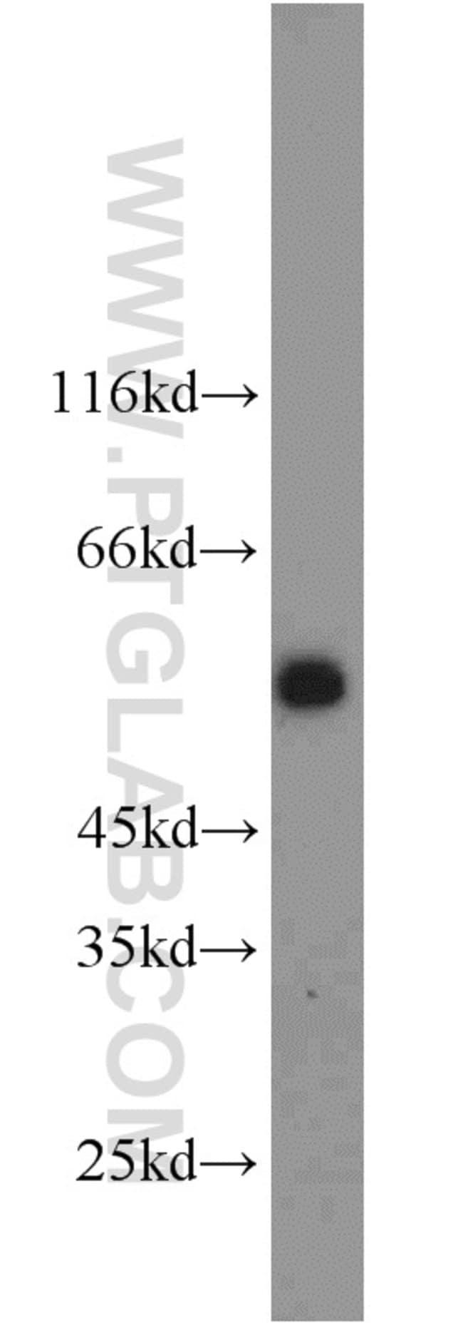 GPR83 Rabbit anti-Human, Polyclonal, Proteintech 20 μL; Unconjugated voir les résultats