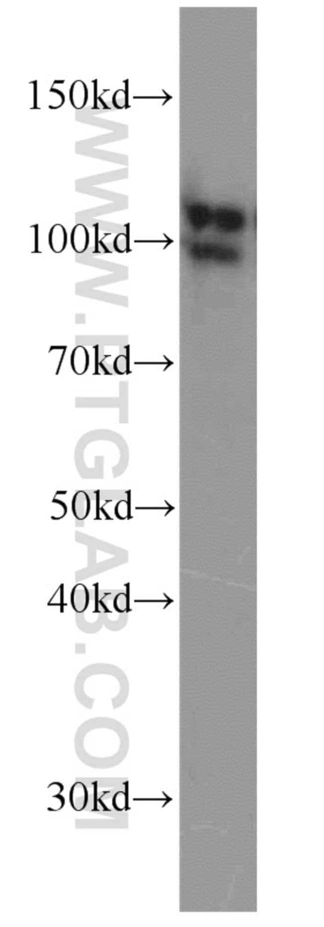 MME/CD10 Rabbit anti-Human, Mouse, Rat, Polyclonal, Proteintech 20 μL; Unconjugated voir les résultats