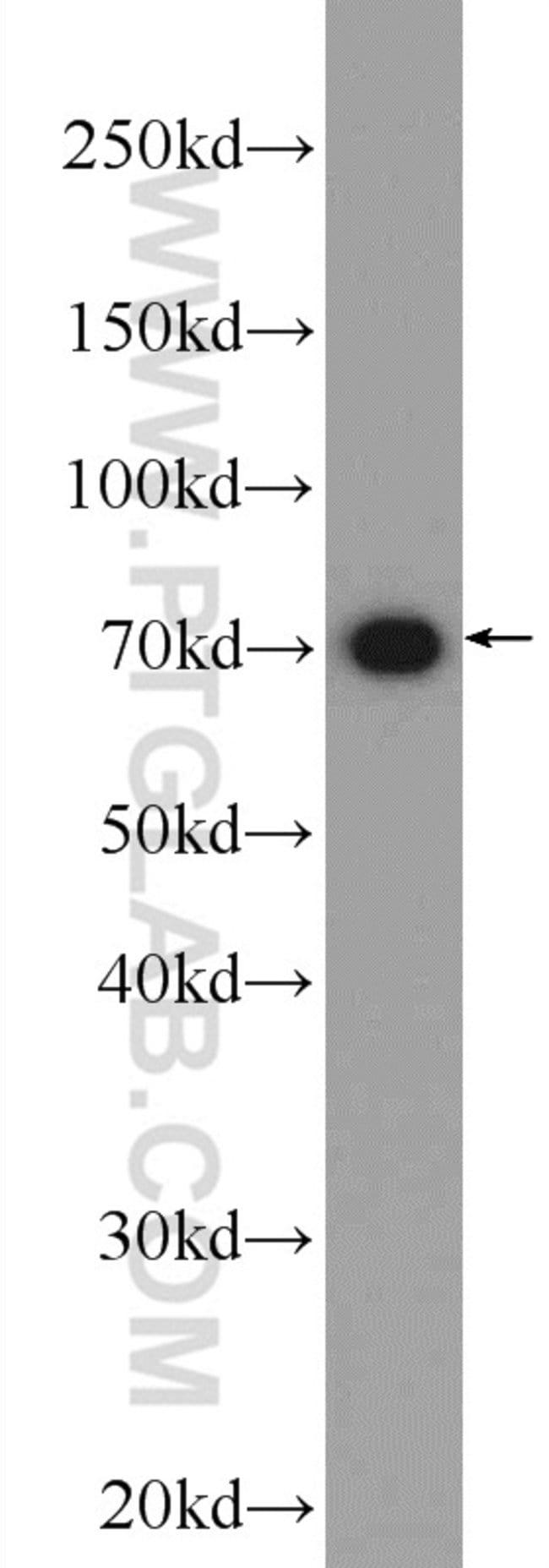 SOLO Rabbit anti-Human, Mouse, Rat, Polyclonal, Proteintech 150 μL; Unconjugated Ver productos