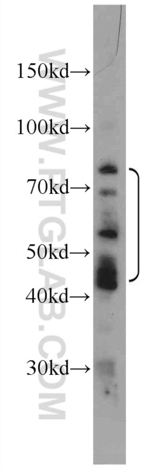 MOK Rabbit anti-Human, Polyclonal, Proteintech 20 μL; Unconjugated voir les résultats