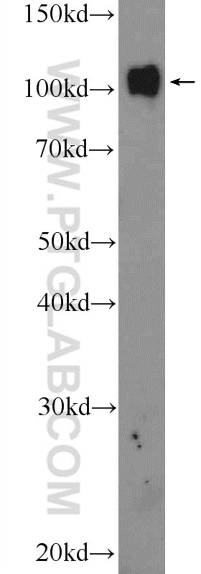 PRPF6 Rabbit anti-Human, Mouse, Polyclonal, Proteintech 150 μL; Unconjugated Ver productos