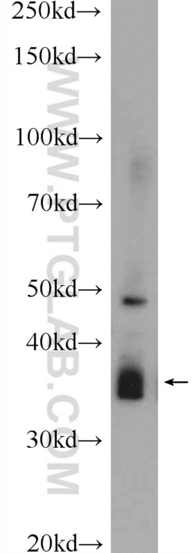 SOX12 Rabbit anti-Human, Mouse, Polyclonal, Proteintech 20 μL; Unconjugated voir les résultats