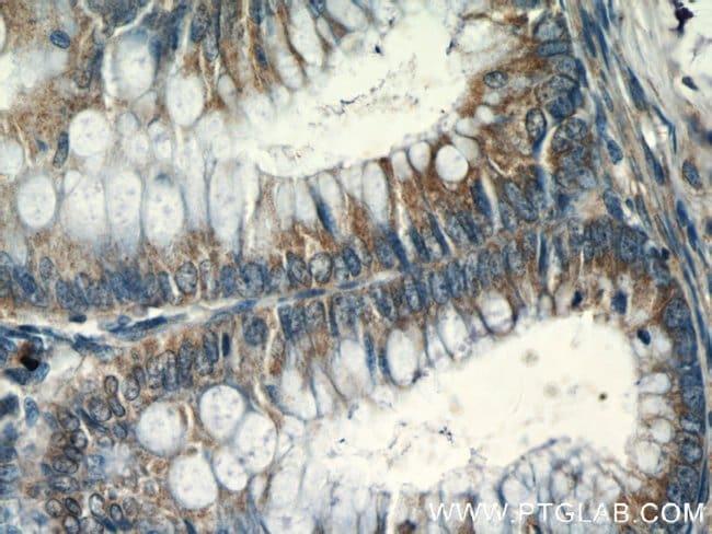 CHPF N-terminal Rabbit anti-Human, Mouse, Rat, Polyclonal, Proteintech 20 μL; Unconjugated voir les résultats