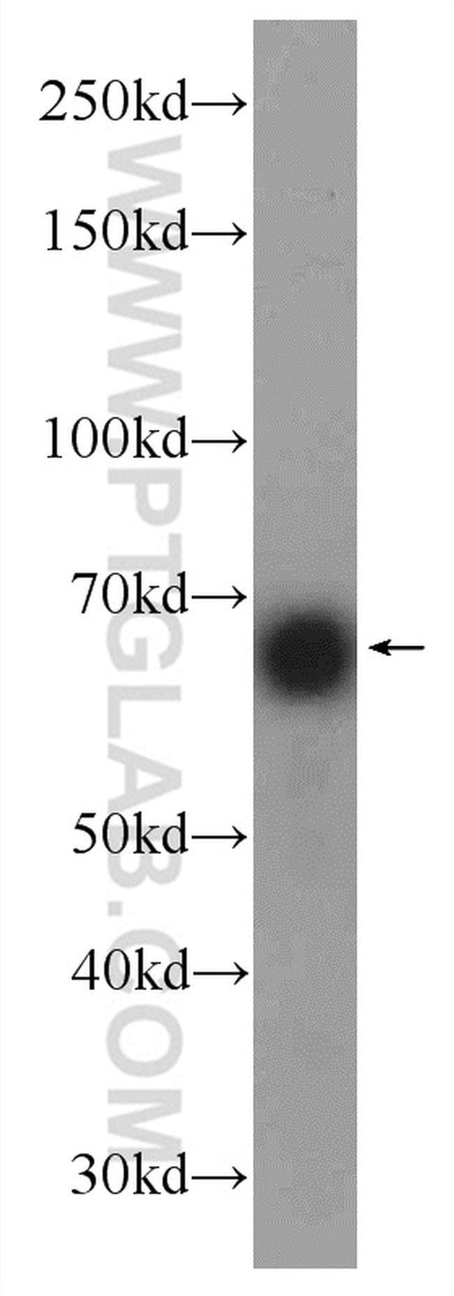 HOMEZ Rabbit anti-Human, Rat, Polyclonal, Proteintech 20 μL; Unconjugated voir les résultats