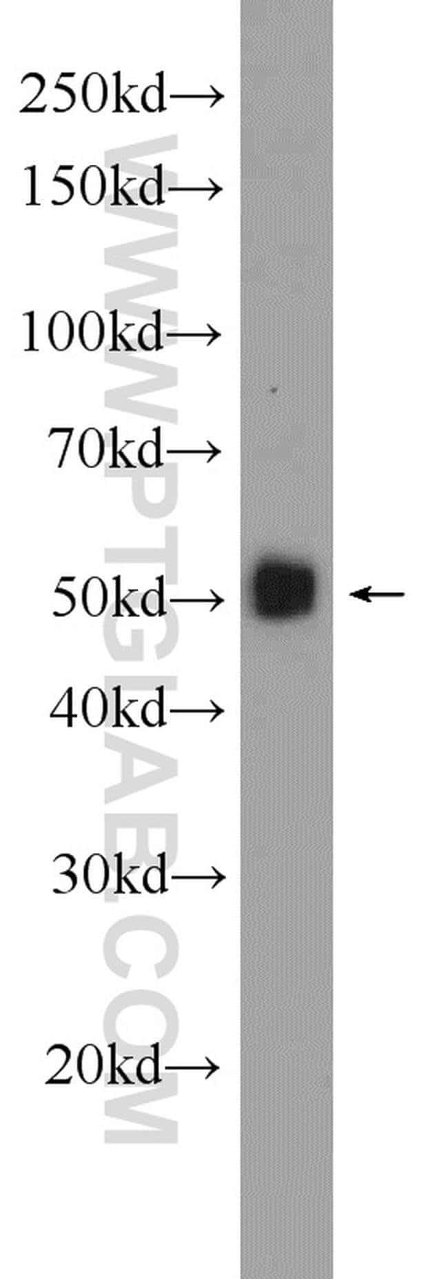 Angiotensinogen Rabbit anti-Human, Polyclonal, Proteintech 20 μL; Unconjugated voir les résultats