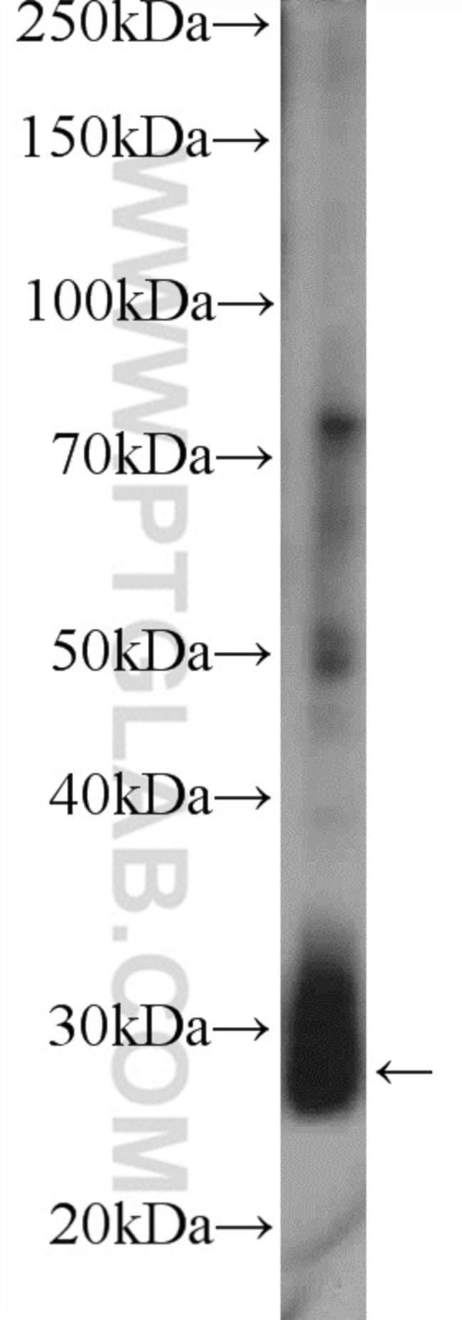 LIN28B Rabbit anti-Human, Mouse, Polyclonal, Proteintech 150 μL; Unconjugated Ver productos