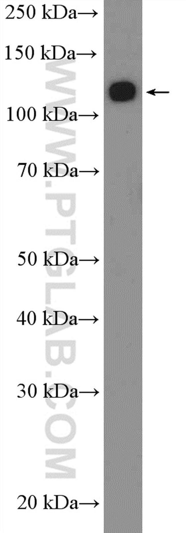 ANKRD27 Rabbit anti-Human, Polyclonal, Proteintech 150 μL; Unconjugated Ver productos