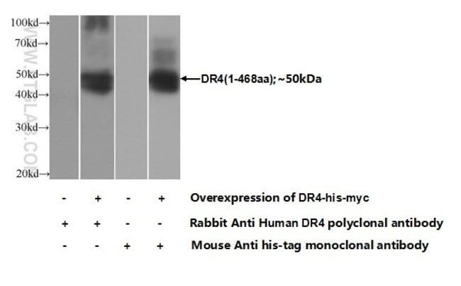 DR4 Rabbit anti-Human, Polyclonal, Proteintech 20 μL; Unconjugated voir les résultats