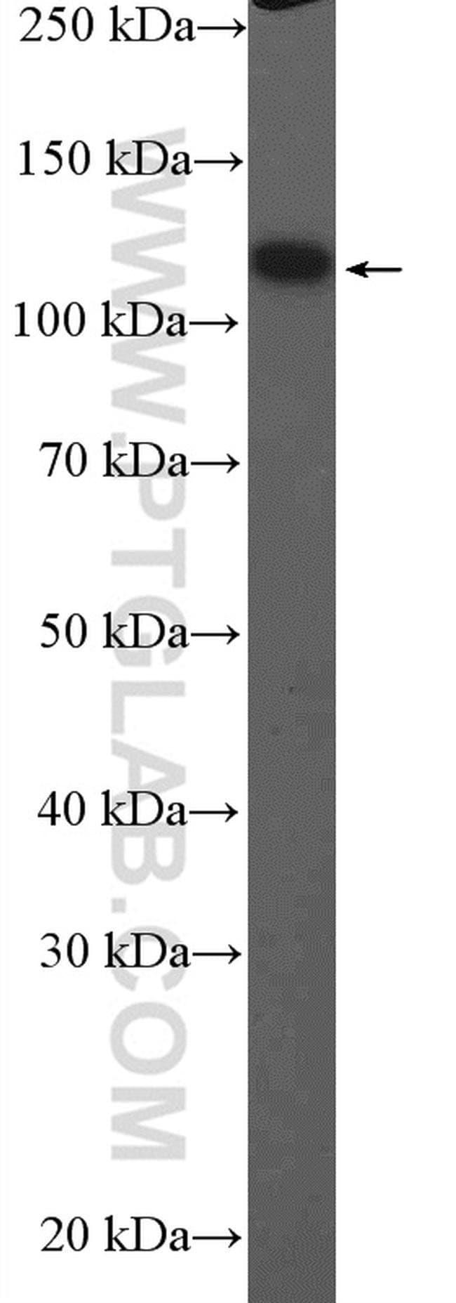 ITIH4 Rabbit anti-Human, Mouse, Polyclonal, Proteintech 20 μL; Unconjugated voir les résultats