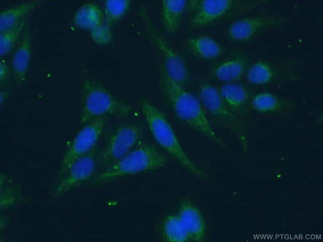 Rac1 Rabbit anti-Human, Mouse, Rat, Polyclonal, Proteintech 150 μL; Unconjugated Ver productos
