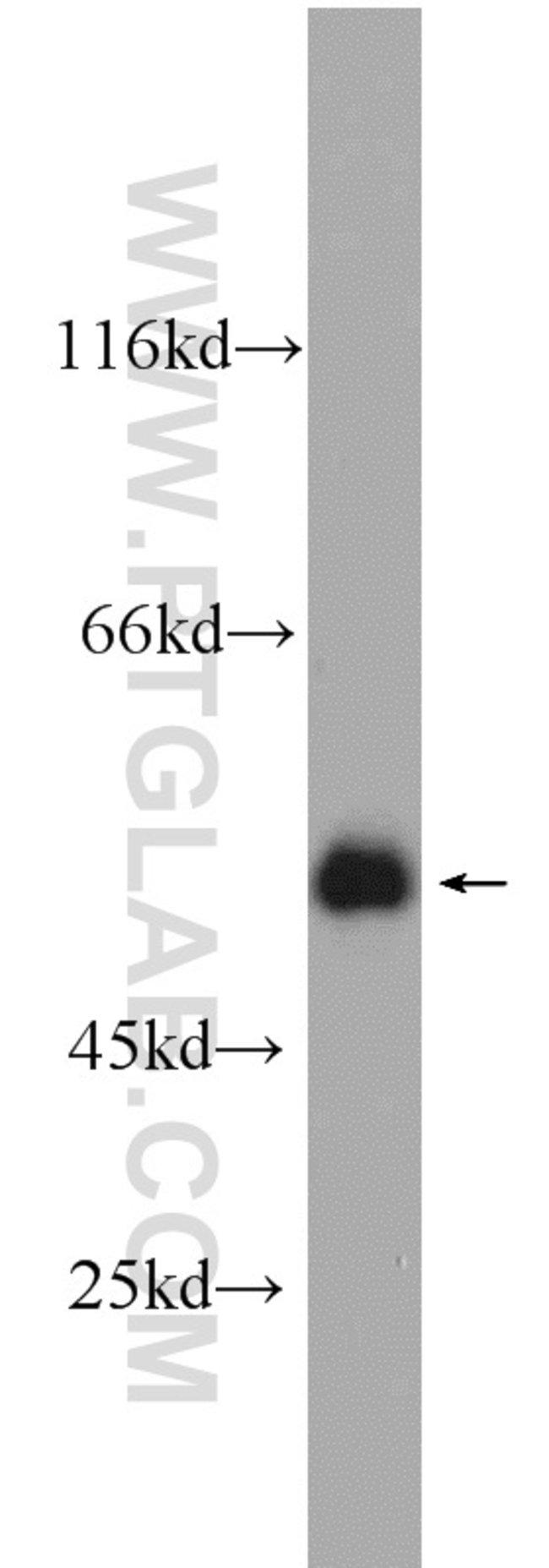 PSMC3 Rabbit anti-Human, Polyclonal, Proteintech 20 μL; Unconjugated voir les résultats