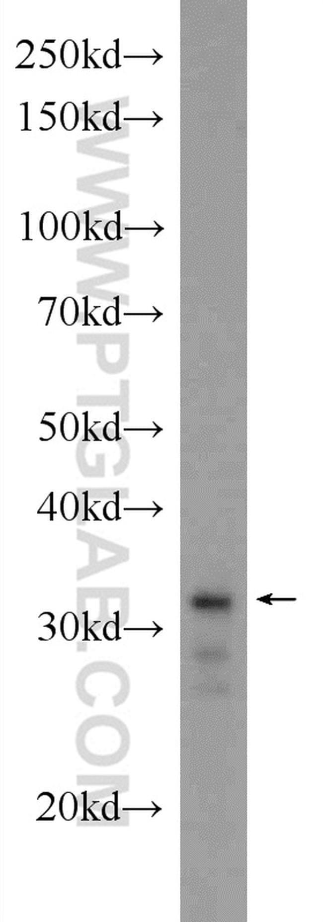 XBP1 Rabbit anti-Human, Mouse, Polyclonal, Proteintech 20 μL; Unconjugated voir les résultats