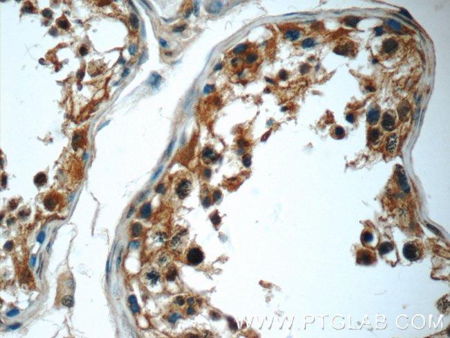 C2orf67 Rabbit anti-Human, Mouse, Polyclonal, Proteintech 20 μL; Unconjugated voir les résultats