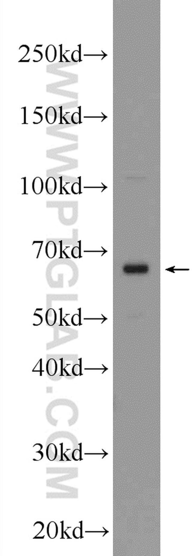 Frizzled 2 Rabbit anti-Human, Mouse, Rat, Polyclonal, Proteintech 20 μL; Unconjugated voir les résultats