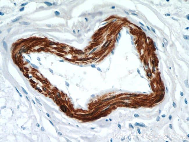 FBXO28 Rabbit anti-Human, Polyclonal, Proteintech 150 μL; Unconjugated Ver productos