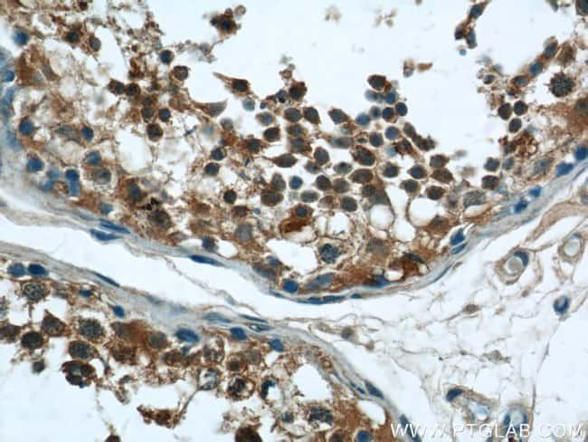 RNF17 Rabbit anti-Human, Mouse, Polyclonal, Proteintech 150 μL; Unconjugated Ver productos