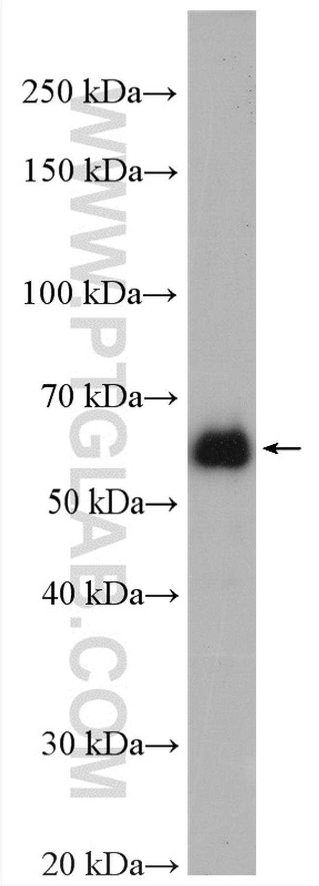 EEPD1 Rabbit anti-Human, Mouse, Polyclonal, Proteintech 20 μL; Unconjugated voir les résultats