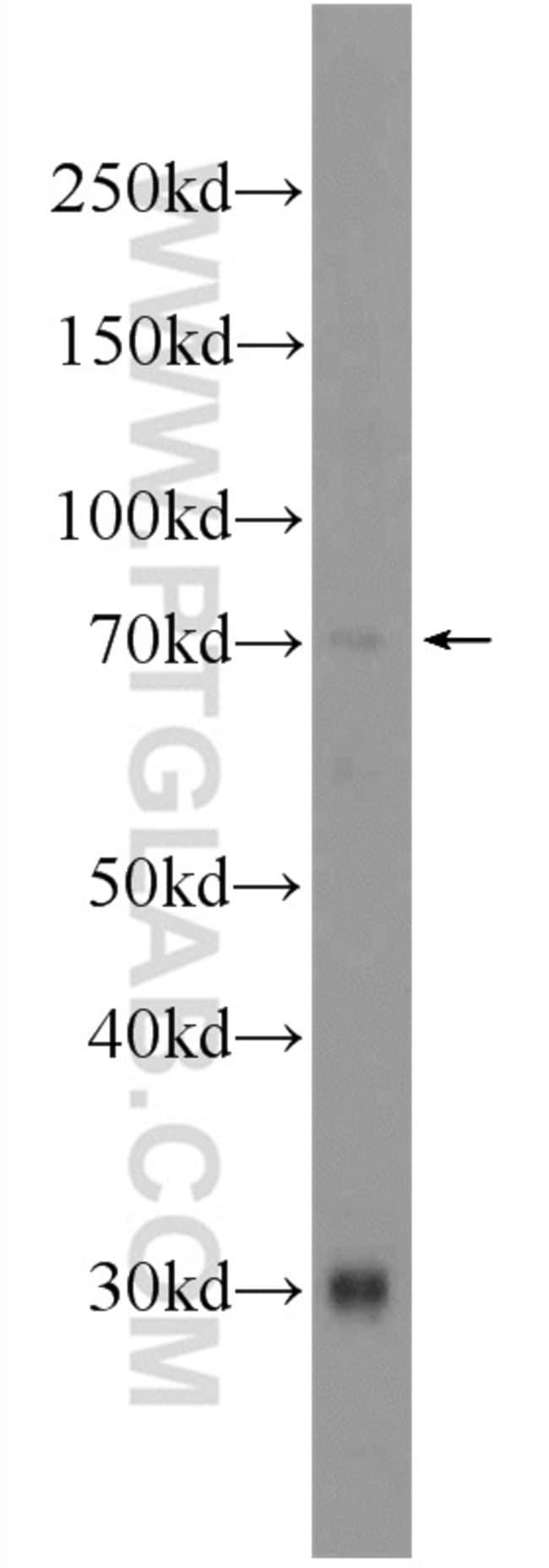 ATG16L2 Rabbit anti-Human, Mouse, Polyclonal, Proteintech 150 μL; Unconjugated Ver productos