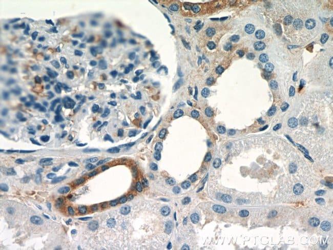 SGLT3/SLC5A4 Rabbit anti-Human, Mouse, Rat, Polyclonal, Proteintech 20 μL; Unconjugated voir les résultats