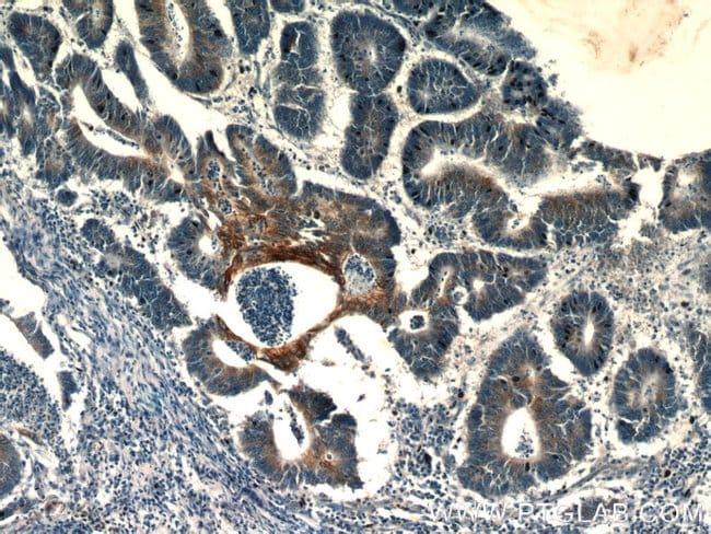 TMEM9B Rabbit anti-Human, Mouse, Rat, Polyclonal, Proteintech 150 μL; Unconjugated Ver productos