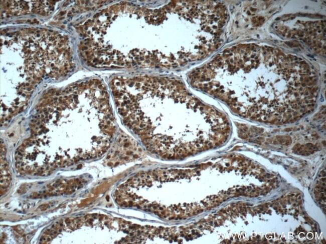 IFT43 Rabbit anti-Human, Polyclonal, Proteintech 20 μL; Unconjugated Produkte