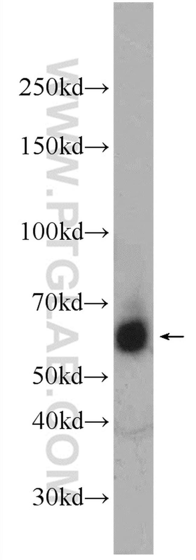 RBM46 Rabbit anti-Human, Polyclonal, Proteintech 20 μL; Unconjugated Produkte