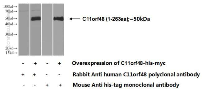 C11orf48 Rabbit anti-Human, Polyclonal, Proteintech 20 μL; Unconjugated voir les résultats