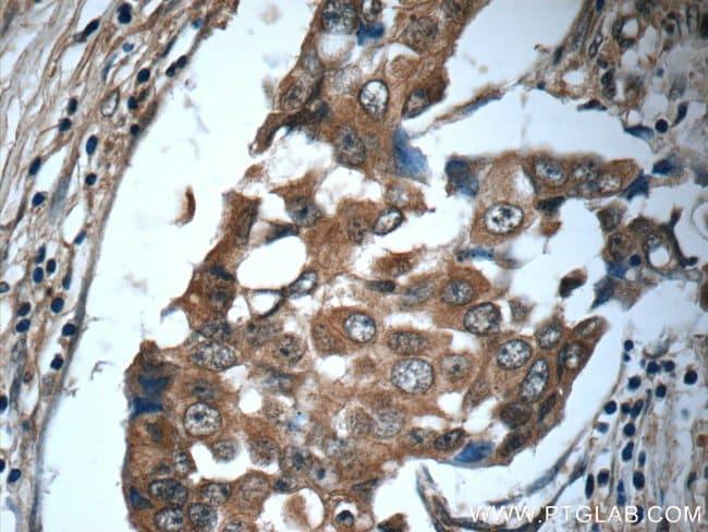 IL-19 Rabbit anti-Human, Polyclonal, Proteintech 20 μL; Unconjugated Produkte