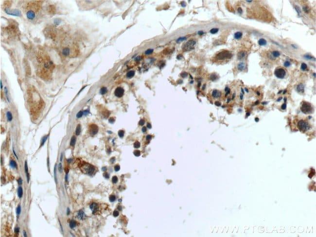 CWC25 Rabbit anti-Human, Mouse, Polyclonal, Proteintech 20 μL; Unconjugated voir les résultats