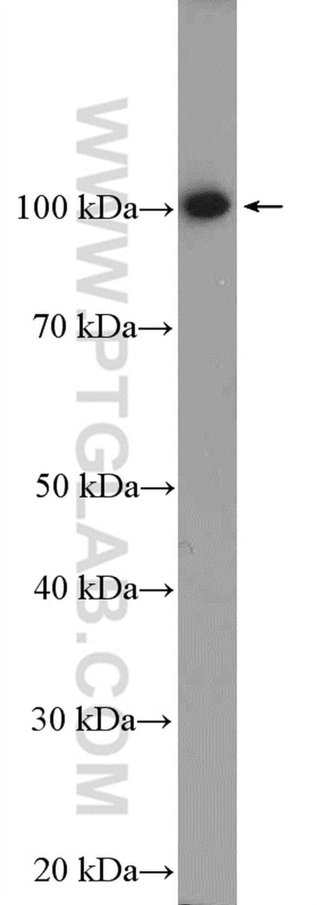 PPP1R10 Rabbit anti-Human, Polyclonal, Proteintech 20 μL; Unconjugated Produkte