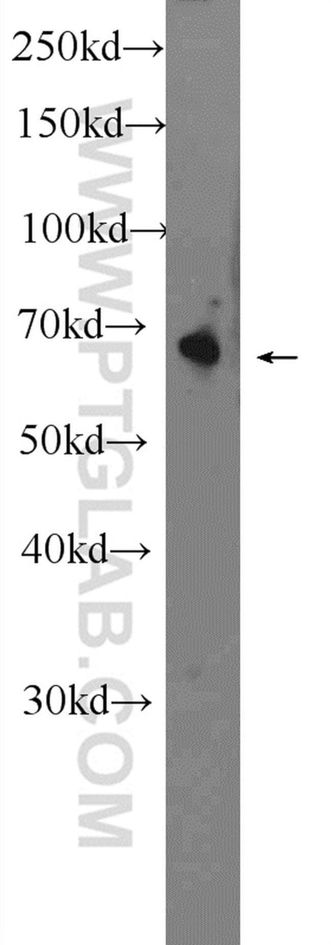 OTOP1 Rabbit anti-Human, Mouse, Polyclonal, Proteintech 150 μL; Unconjugated Ver productos