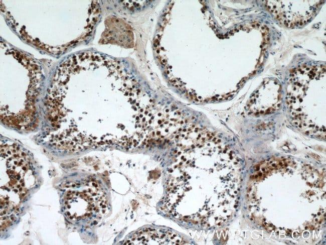 PRPF39 Rabbit anti-Human, Polyclonal, Proteintech 20 μL; Unconjugated Produkte