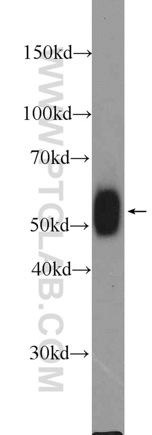 LCK Rabbit anti-Human, Mouse, Polyclonal, Proteintech 20 μL; Unconjugated voir les résultats