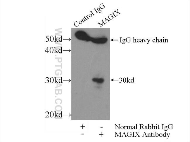 MAGIX Rabbit anti-Human, Mouse, Polyclonal, Proteintech 150 μL; Unconjugated Ver productos