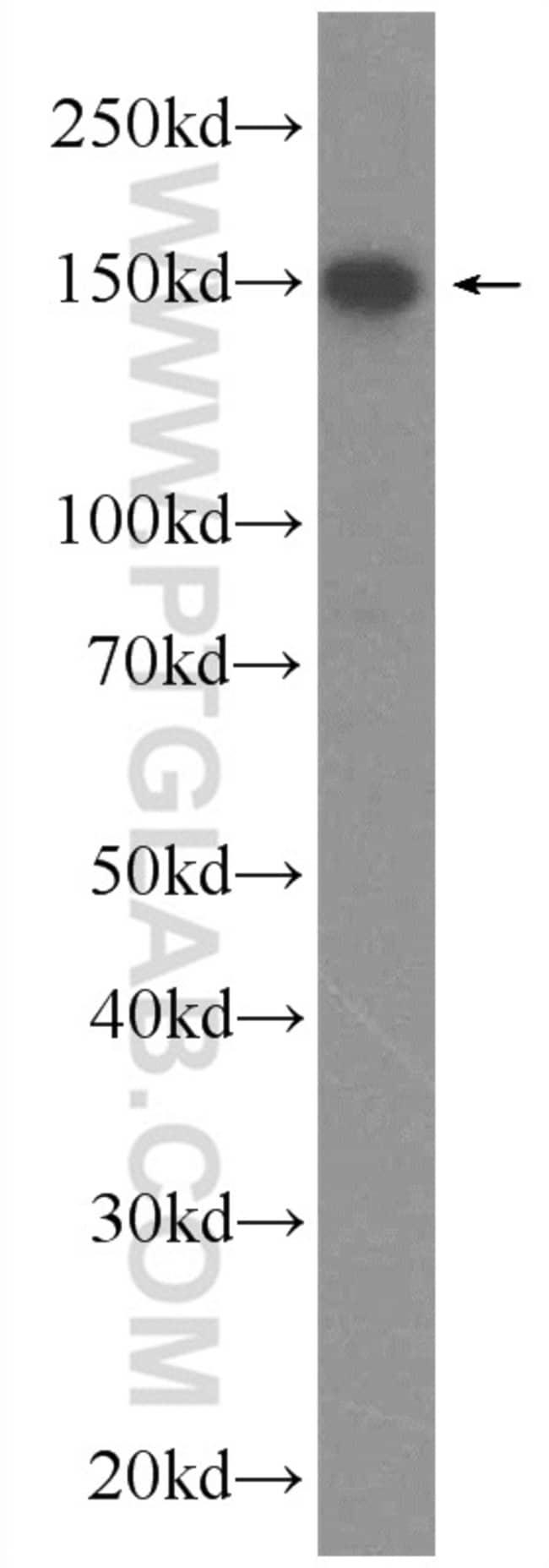 DHX57 Rabbit anti-Human, Polyclonal, Proteintech 150 μL; Unconjugated Ver productos