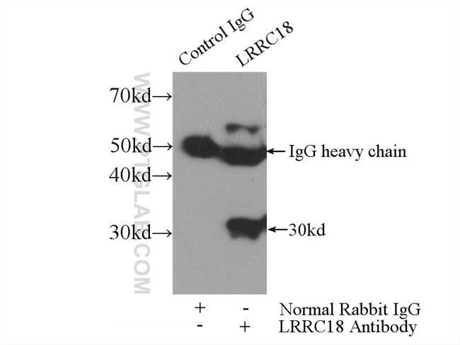 LRRC18 Rabbit anti-Human, Mouse, Polyclonal, Proteintech 150 μL; Unconjugated Ver productos