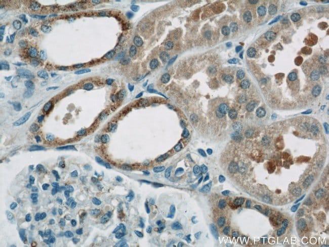 HEATR2 Rabbit anti-Human, Rat, Polyclonal, Proteintech 150 μL; Unconjugated Ver productos