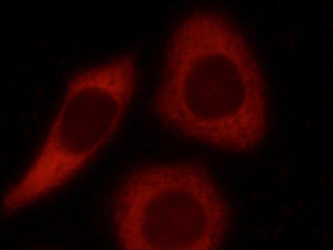 LCTL Rabbit anti-Human, Polyclonal, Proteintech 20 μL; Unconjugated Produkte