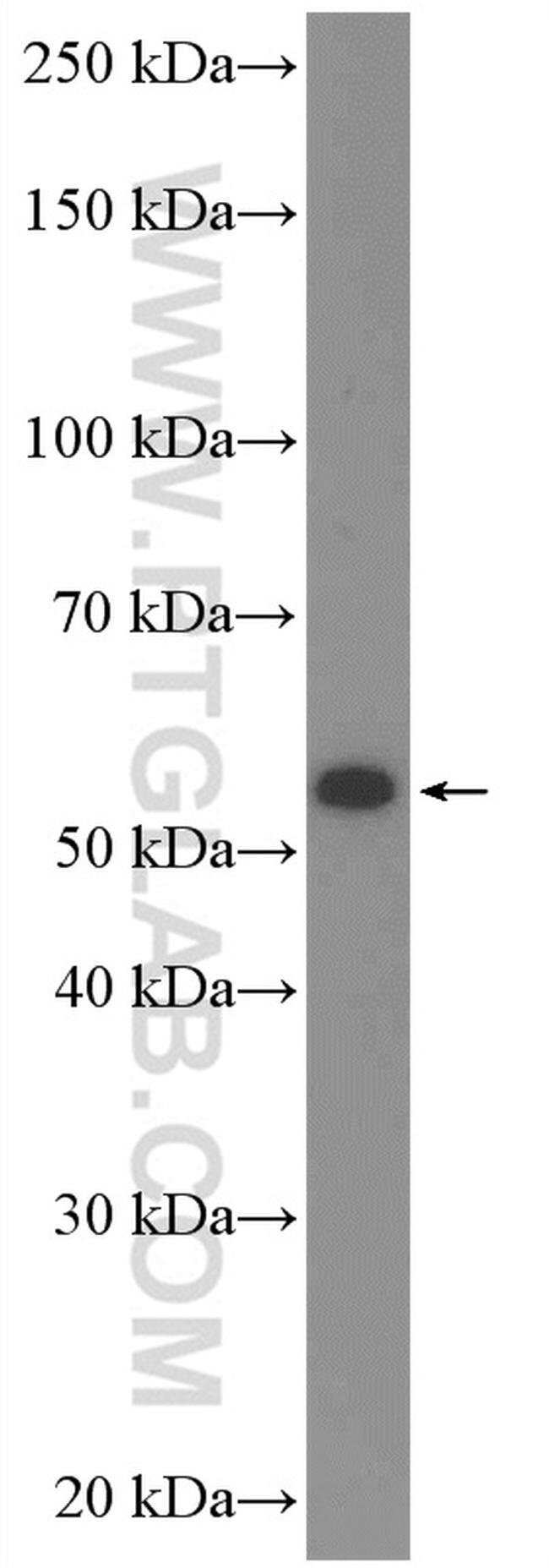C17orf46 Rabbit anti-Human, Polyclonal, Proteintech 20 μL; Unconjugated voir les résultats