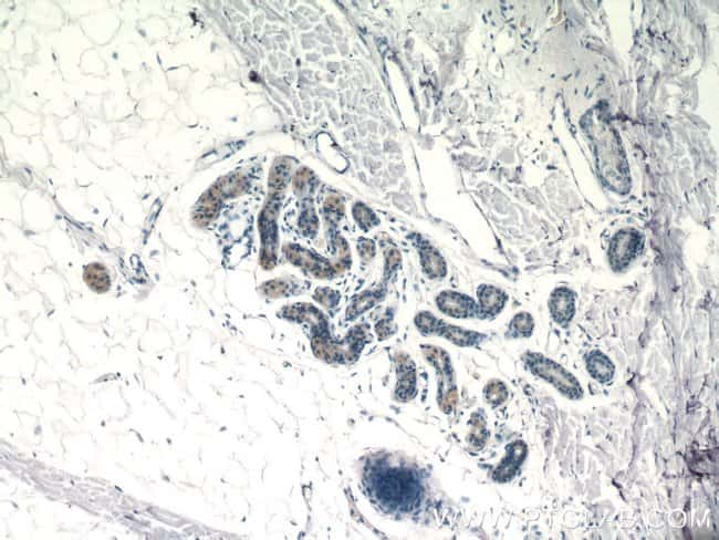 SPRR2F Rabbit anti-Human, Polyclonal, Proteintech 20 μL; Unconjugated Produkte