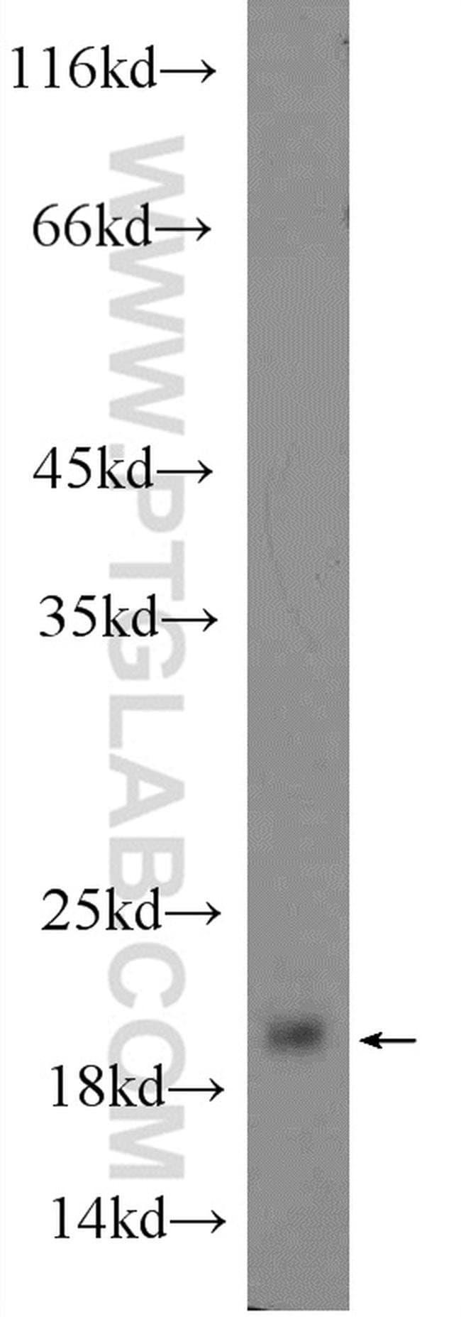 GKN2 Rabbit anti-Human, Mouse, Polyclonal, Proteintech 20 μL; Unconjugated voir les résultats